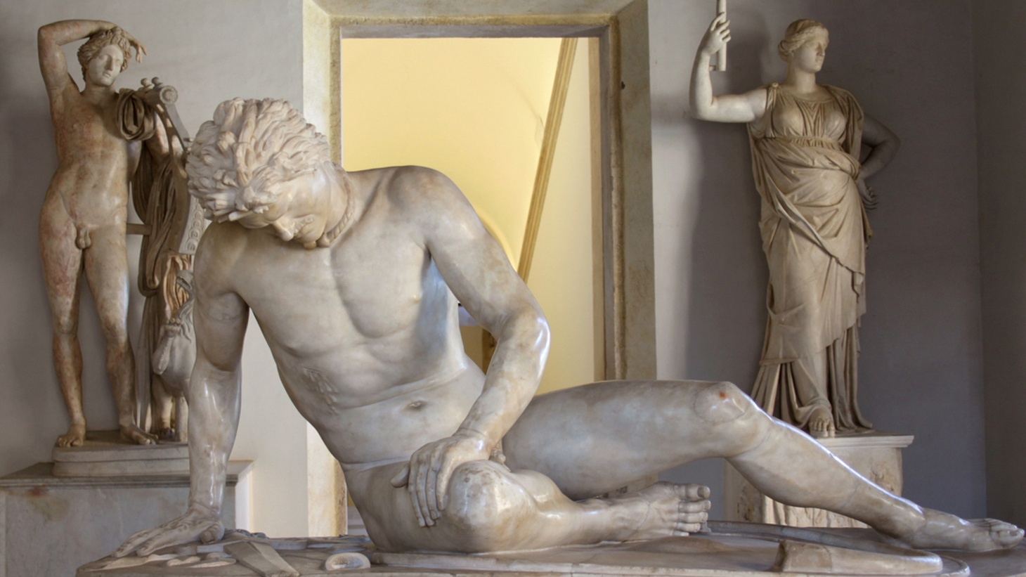 Edward Goldman talks about questionable attitudes and political responses to nudity in classical masterpieces.