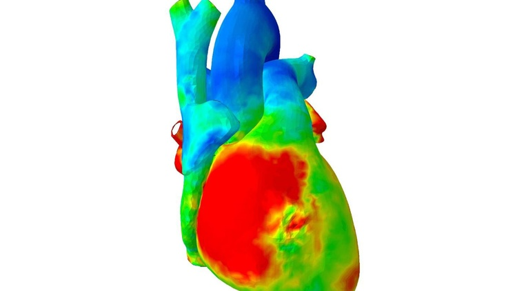 A heart heat map Courtesy of the Living Heart Project   Steve Levine is a mechanical engineer with Dassault Systèmes, the company behind the software modeling used for designing…