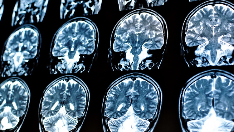 Modern technology has been a game changer in allowing scientists and researchers to view brain activity in real time.