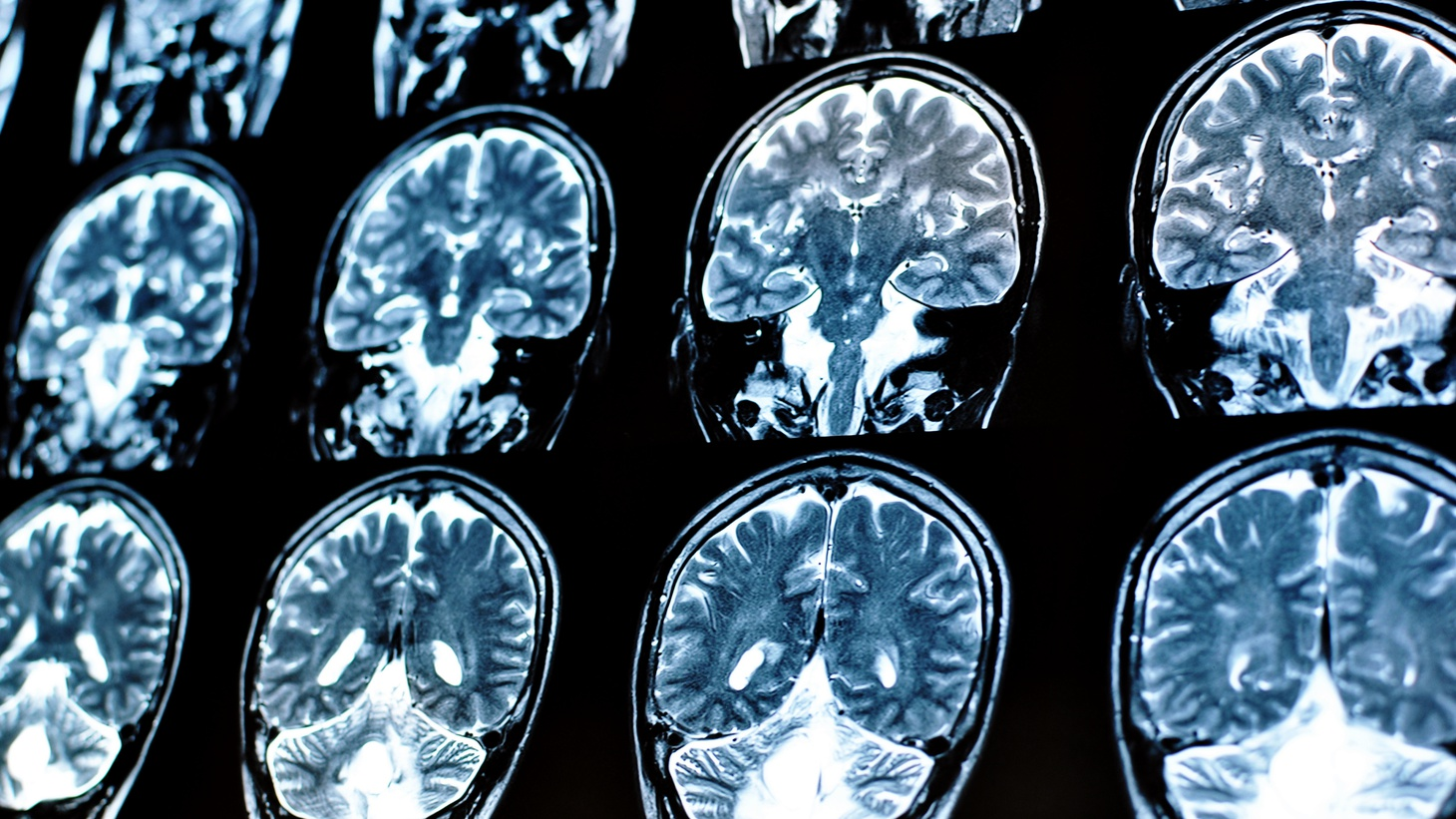 Electronic stimulation to the brain could help maintain that balance and communication between different regions of the brain.