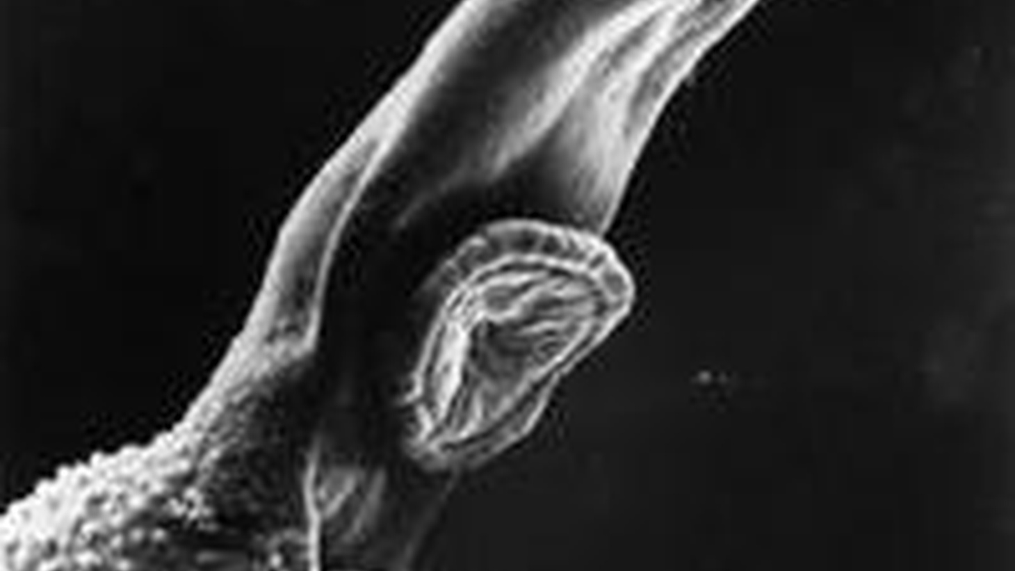 What's gotten into you? In this hour, Radiolab uncovers a world full of parasites.