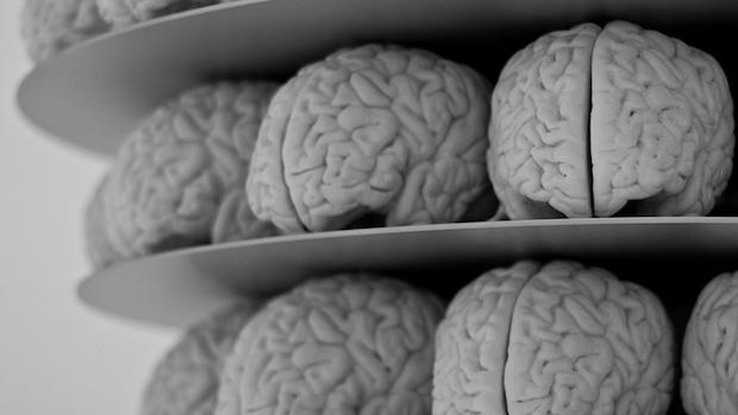 Strange stories of brains that lead their owners astray, knock them off balance, and, sometimes, propel them to do amazing things.