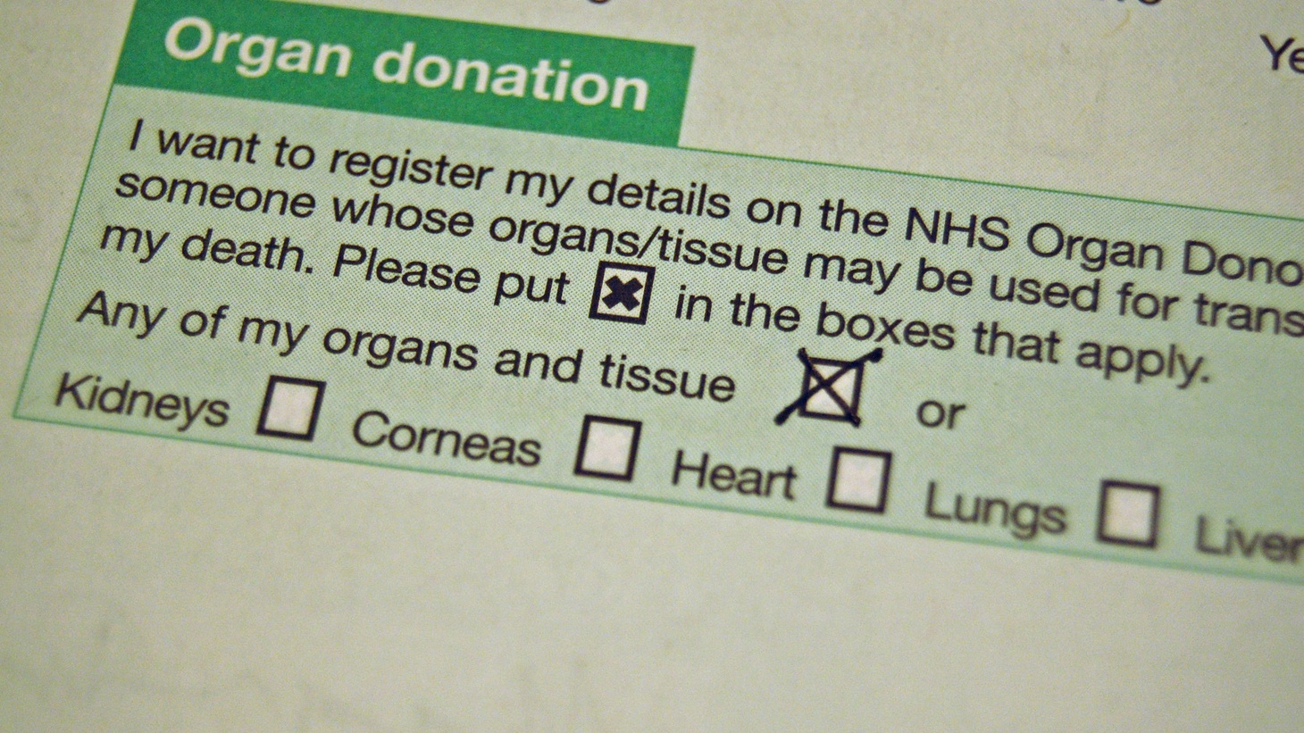 Organ donation form.