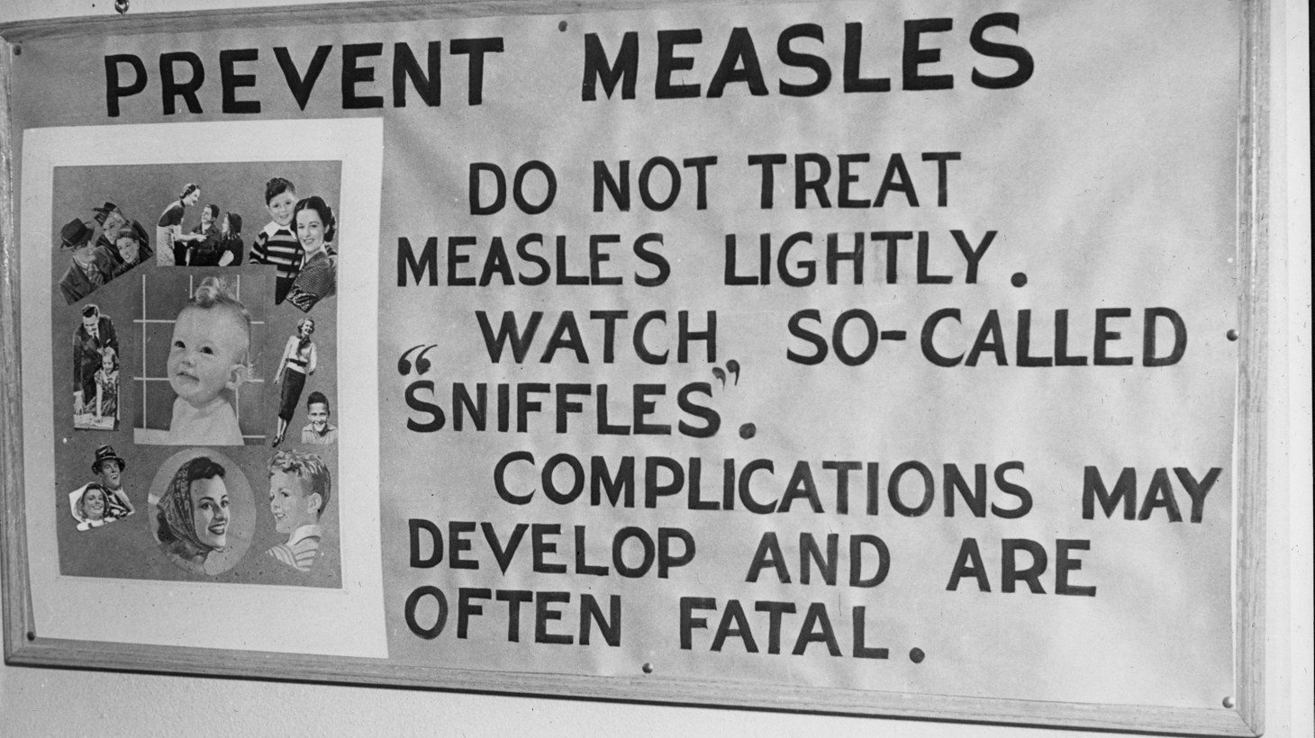 """Prevent Measles"" poster displayed by the Public Health Department, Minneapolis, MN, February 14, 1939."