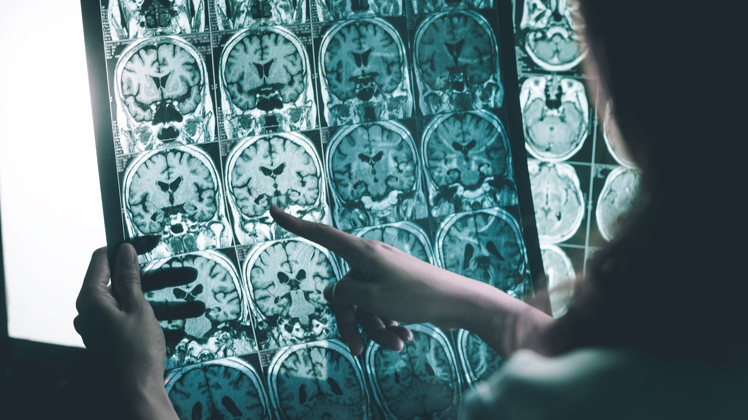A health care worker detects Alzheimer's disease on an MRI scan.
