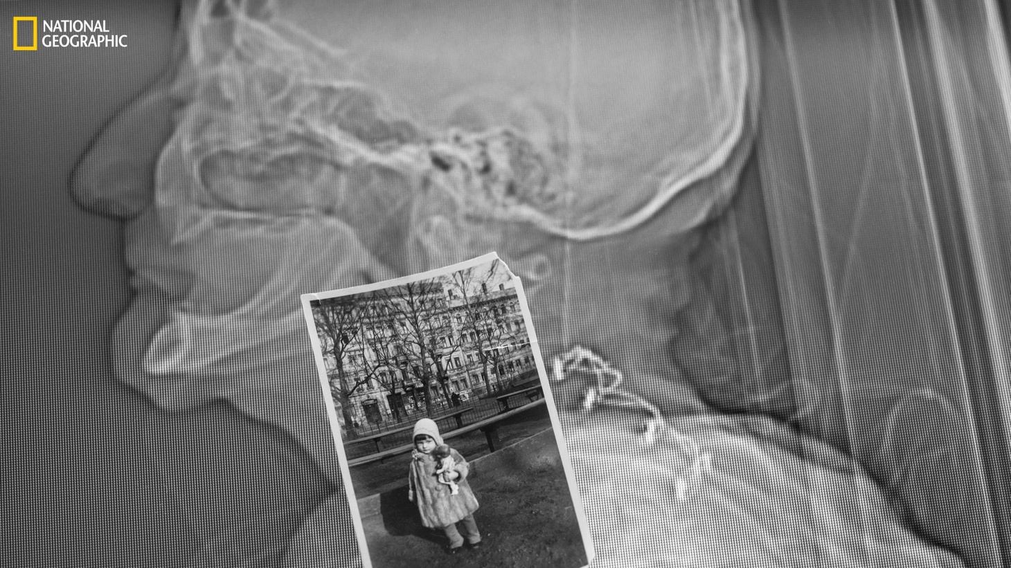 A CT scan, paired with a photo of Susan Potter at age three, shows wires stabilizing her neck vertebrae after an earlier car crash. Potter's medical history was known.